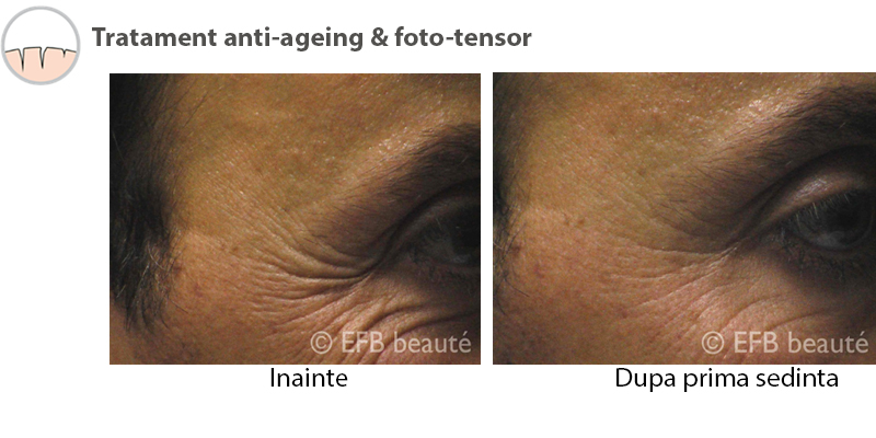 Rezultate tratament Antiaging 2