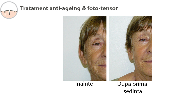 Rezultate tratament Antiaging 3